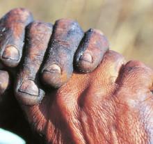 Assunto:Mão com facãoLocal:Guiara-SPData:1996Autor:Delfim Martins